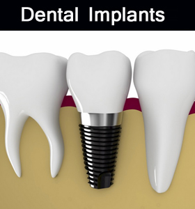 Dental Implants in Parramatta clinic