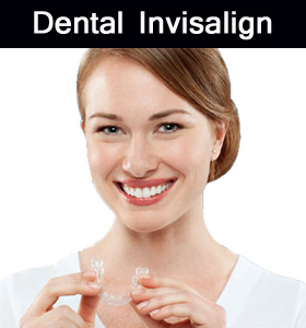 Dental Invisalign in Parramatta dental
