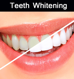 Parramatta dental-teeth whitening