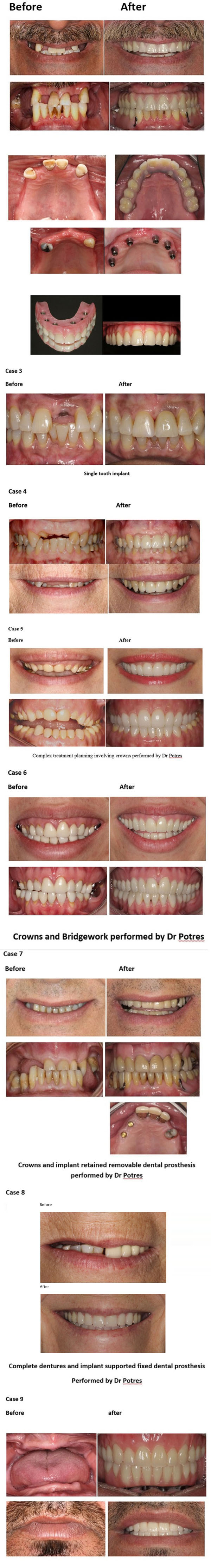 Real cosmetic dentistry before and after photo's new