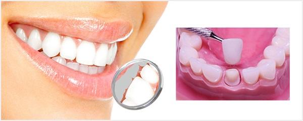 dental crowns and bridgework