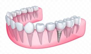 dental-implants-example