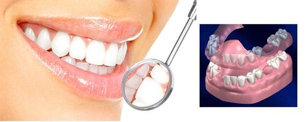 partial dentures-scenario