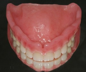 removalable dentures
