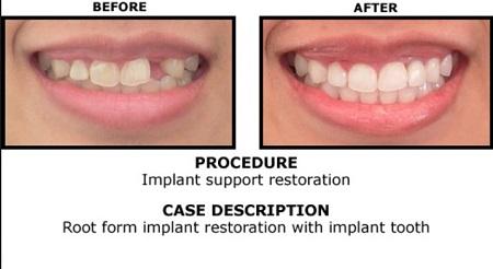 single-tooth-implant-dentist-parramatta-new