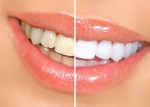 teeth-whitening-parramatta