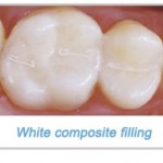 Composite Resin Dental Fillings