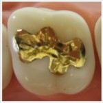 gold dental fillings