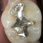 silver amalgam dental fillings