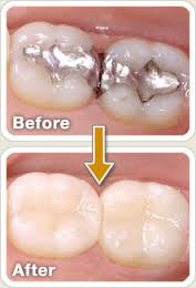 Parramatta dental filling treatment