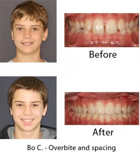 dental invisalign before and after