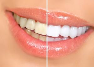 effective teeth whitening in parramatta